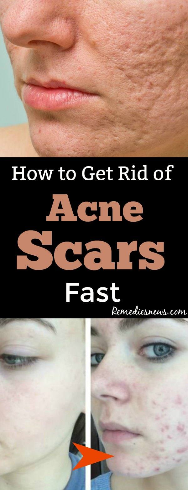 How to Get Rid of Acne Scars Fast - 9 Best Home Remedies