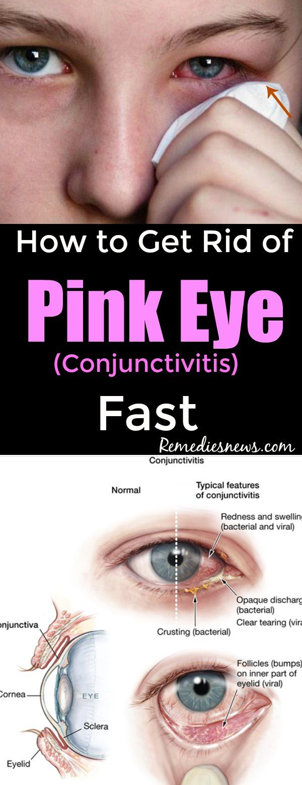 How to Get Rid of Pink Eye (Conjunctivitis) Fast
