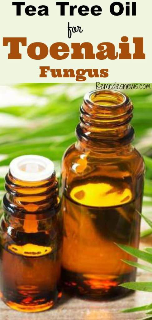 How to Get Rid of Toenail Fungus with Tea Tree Oil fast remedy 1