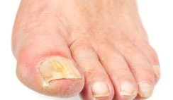 How to Get Rid of Toenail Fungus with Tea Tree Oil (Fast Remedy)