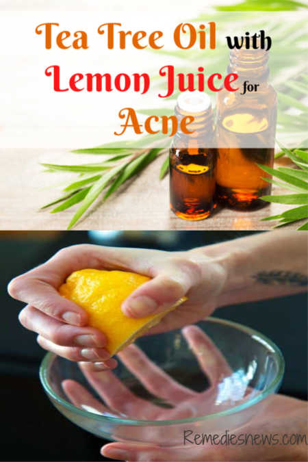 Tea Tree Oil with Lemon Juice for Acne