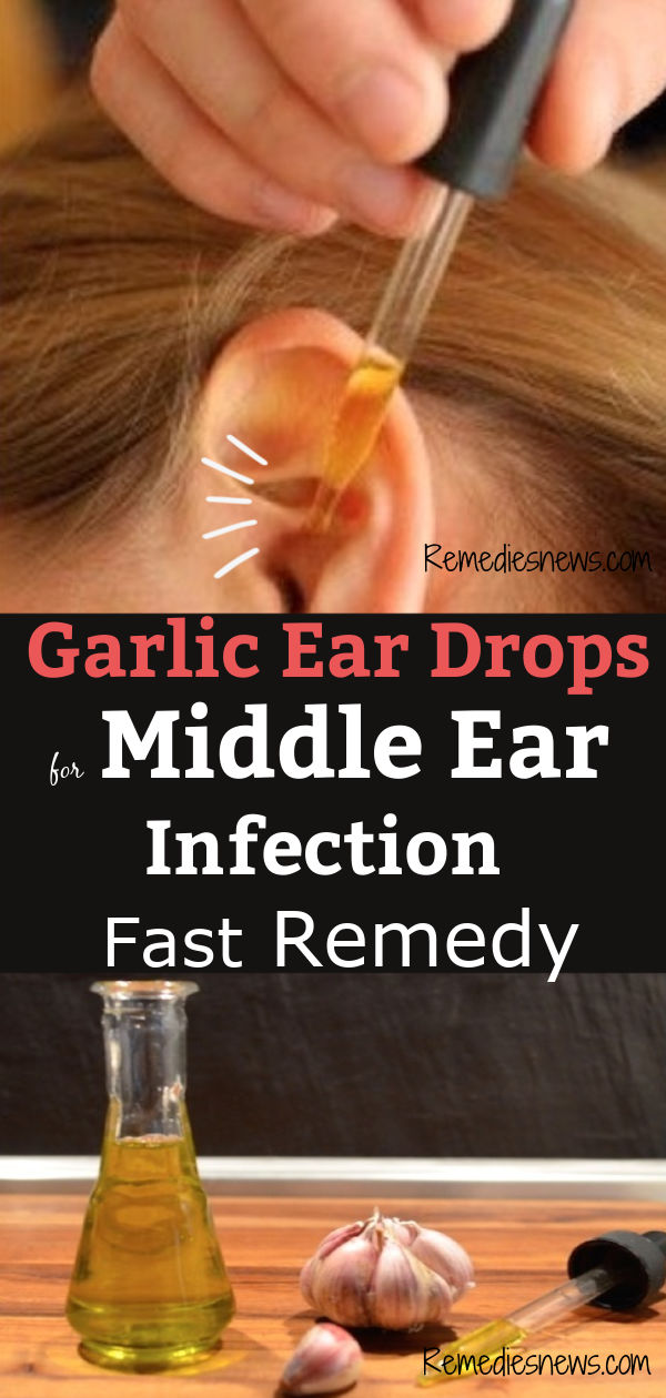 Garlic ear drops for middle ear infection treatments, symptoms, and causes.Find here best home remedies to get rid of ear infection fast.