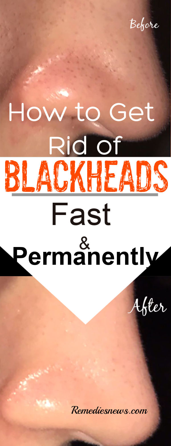 Blackheads Removal - How to Get Rid of Blackheads Fast- 9 Effective Natural Remedies