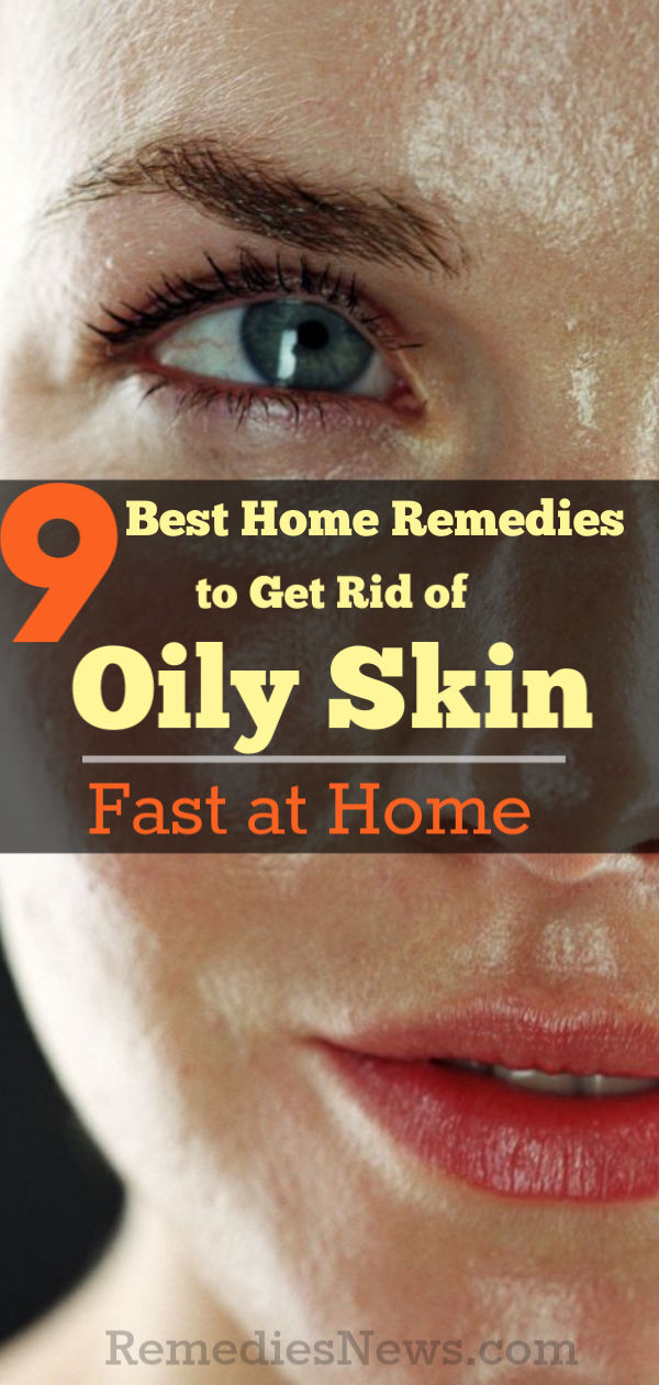 How to Get Rid of Oily Skin Fast at Home: 9 Best Natural Remedies