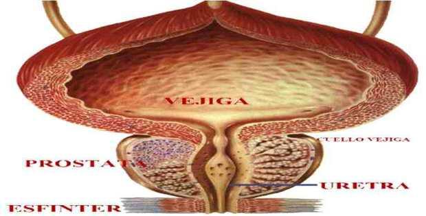 Curar la próstata