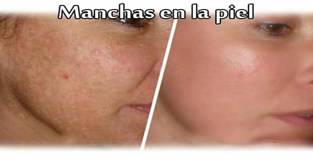 Cómo tener piel sana