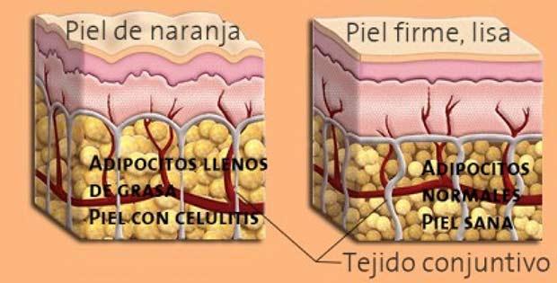 La celulitis