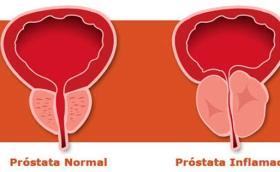 Síntomas de próstata