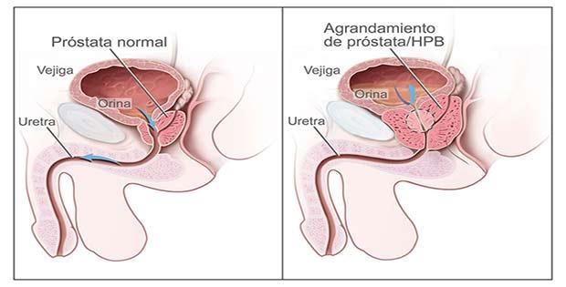 La inflamación de la próstata