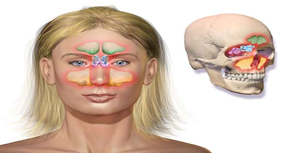 Remedio sinusitis