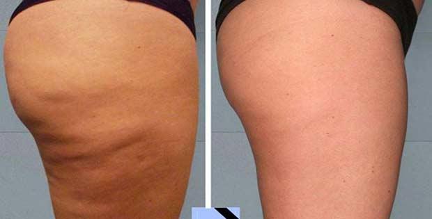 La celulitis en piernas