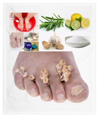 remedios caseros para los hongos en los pies