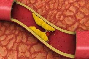 Canela y Miel para Bajar el Colesterol