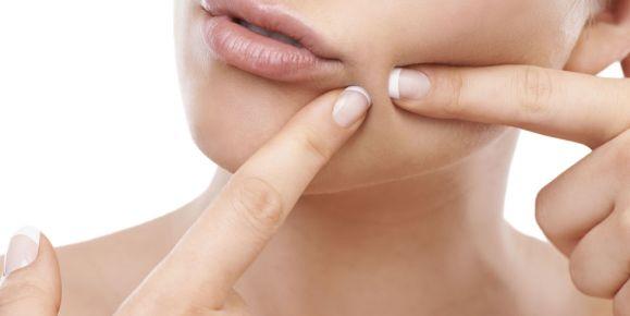 Beneficios de la canela con miel en el rostro