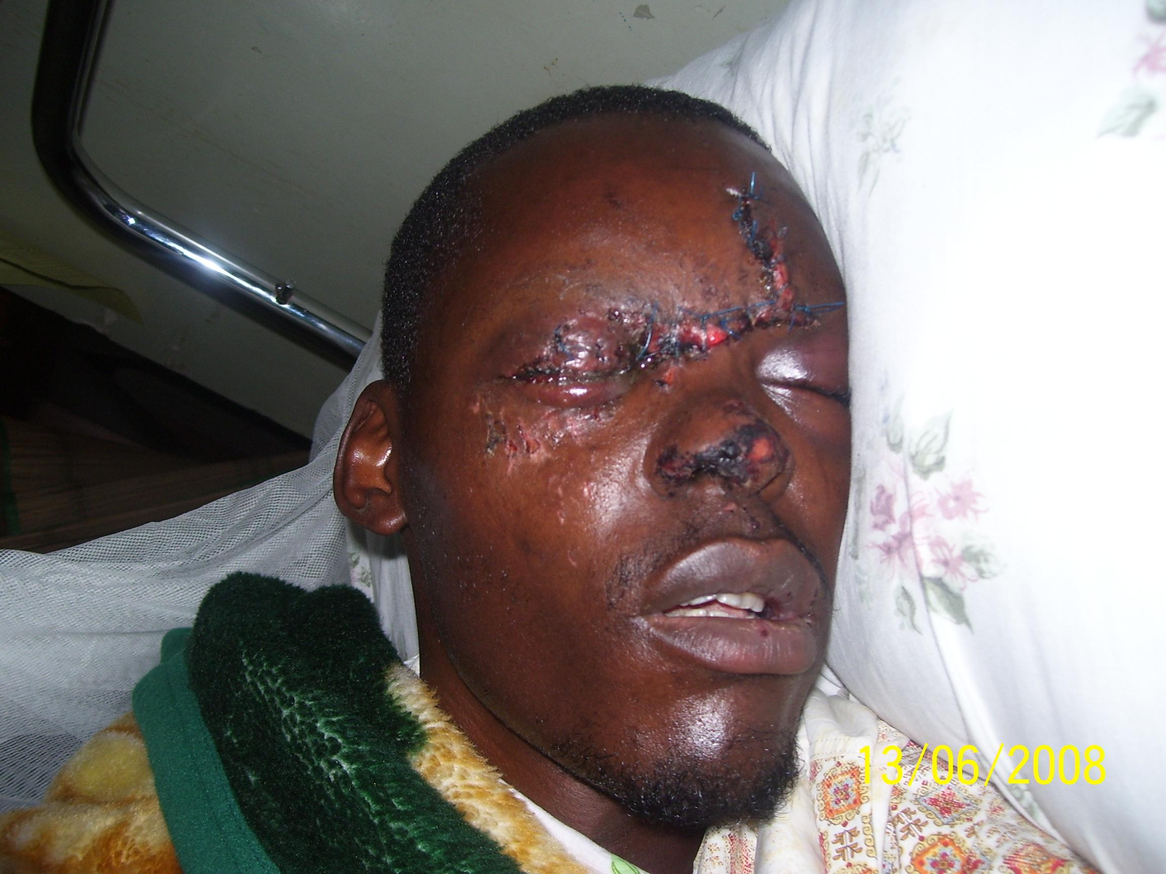 Fred immediately after his accident.  Nkumba Ministries paid his medical bills.
