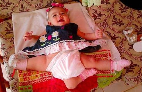 37 Realizarán cirugía mayor a niña que nació con tres piernas [Los Angeles]