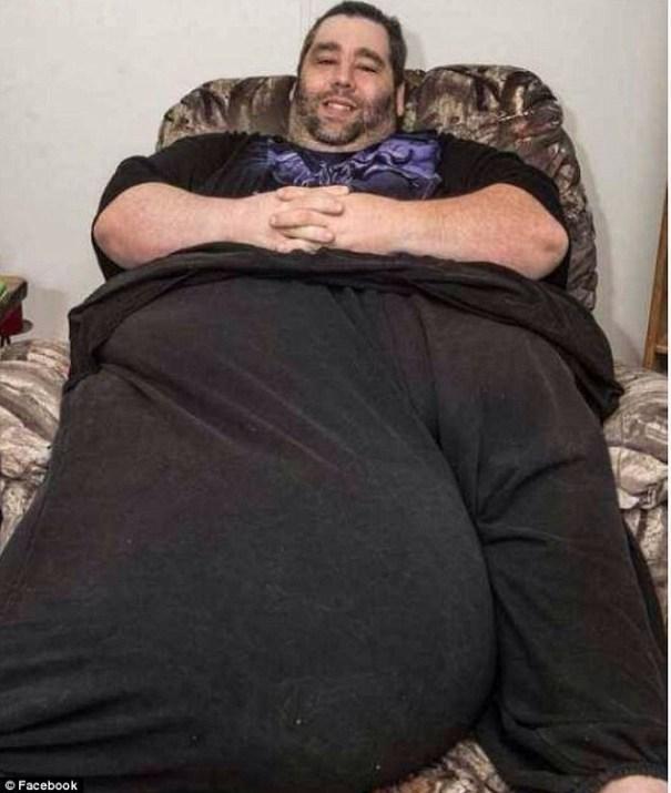 image104 Hombre con escroto de 100 libras está recaudando dinero para cirugía