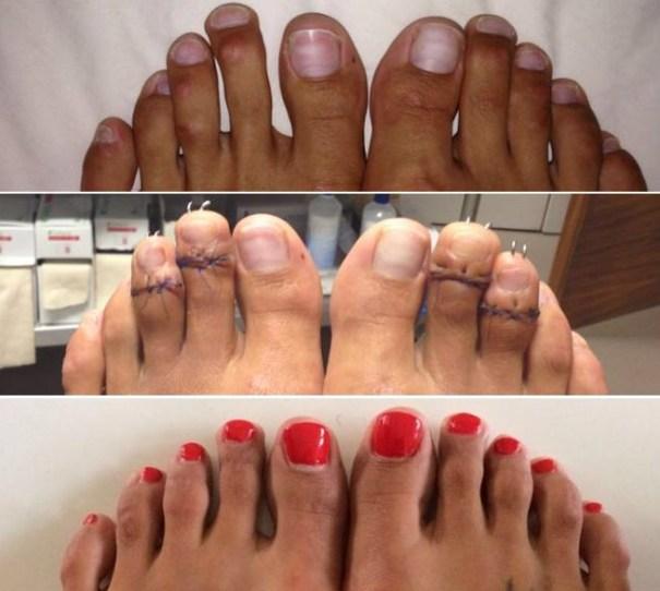 image93 Nueva y peligrosa moda: acortarse los dedos de los pies