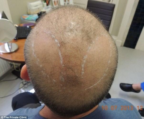20140724 142815 52095597 Los hombres pueden tener transplantes de cabello utilizando el pelo de su PECHO