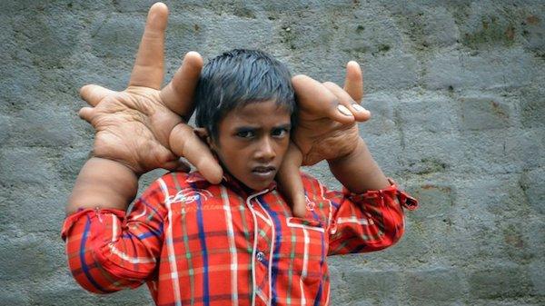 manos gigantes Sufre bullying niño con manos gigantes [India]