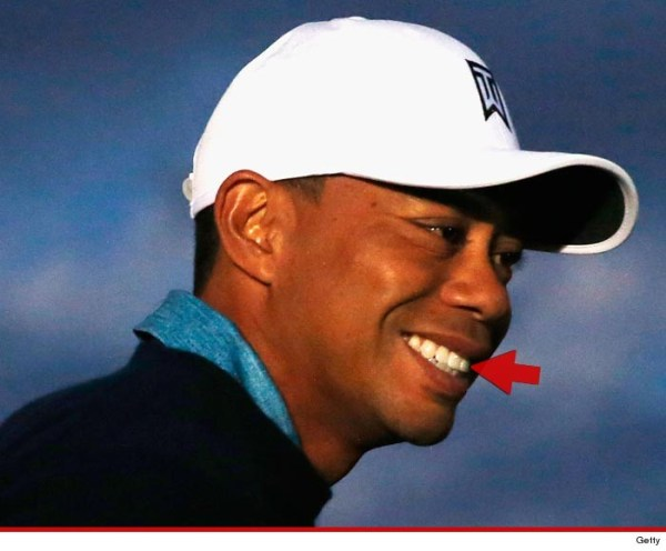 0127-tiger-woods-tooth-getty-4 (1)