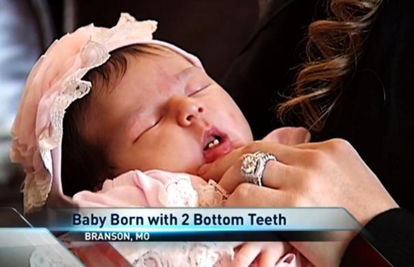 teeth9n 1 web Fotos   Chamaquita nace con dos dientes de abajo