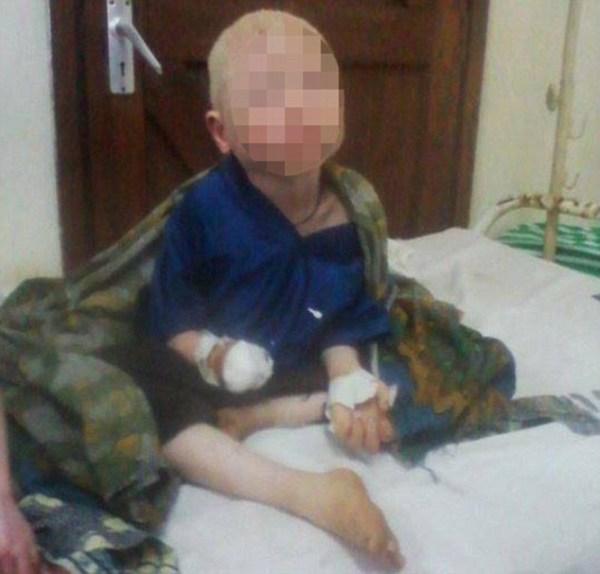 image240 Mutilan mano a niño albino para hacer pociones para curanderos en Tanzania