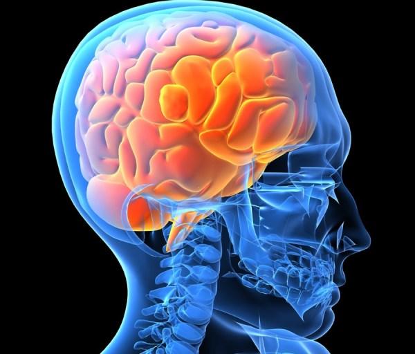 Brain_0