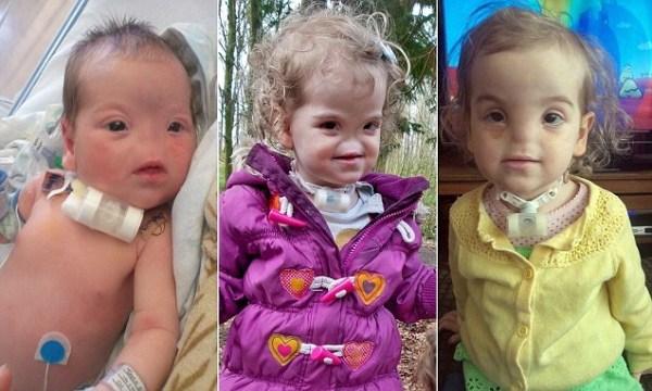 image51 La niña que nació sin nariz