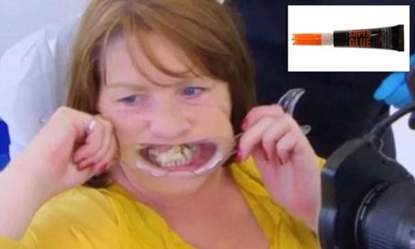 img 9325 Tipa se pega los dientes por miedo al dentista