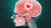 amor-cerebro-enamoramiento