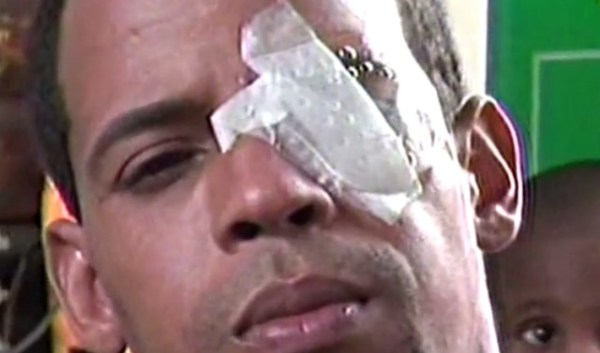 apunalado en el ojo