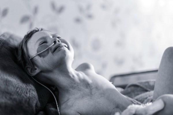 jessica whelan1 La foto que rompió millones de corazones; niña pierde la batalla contra el cáncer