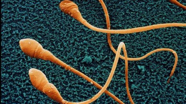 espermatozoides 1 600x337 La caída del conteo de espermatozoides puede conducir a la extinción humana