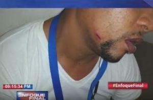 perdigones 300x197 Policias le entraron con perdigonez a periodista en Jimaní