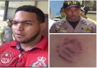 Mordía policial 300x212 Video: Mordía policial