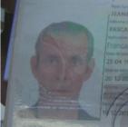 Jeannot Pascal 1 300x298 RD: Francés con tuberculosis lleva dos meses en hospital