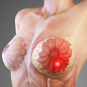 Pictures_Of_Breast_Cancer_1