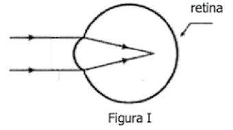 34339de5e0 ... os raios luminosos são interceptados pela retina antes de se formar a  imagem, conforme representado na figura II abaixo. Esse defeito de visão é  chamado ...