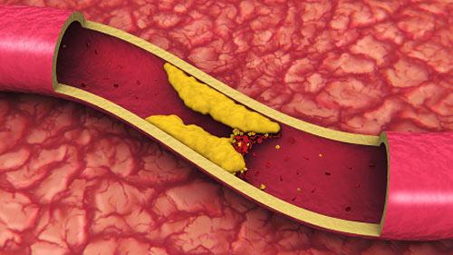 Seberapa bahayanya Kolesterol Dalam darah