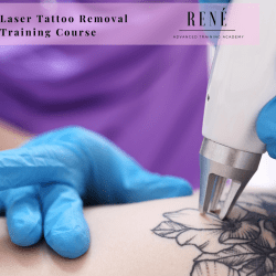 Online Laser Tattoo Removal Course