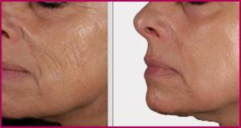 skin-rejuvenation-resurfasing