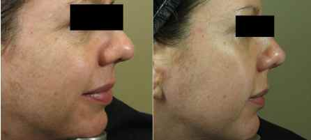 Before and After Micropen™ treatment by Martha Stewart, MD