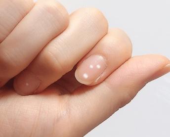 爪に白い斑点が これは病気 それとも幸運 Report Hot Cafe