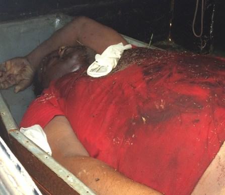 Vítima foi encaminhada na viatura fúnebre