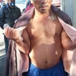 AVISO: LE QUEMARON EL ROSTRO EN EL PENAL DE BARRIENTOS, TLALNEPANTLA
