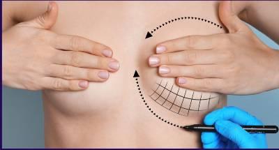 Como fica a cicatriz da mamoplastia redutora