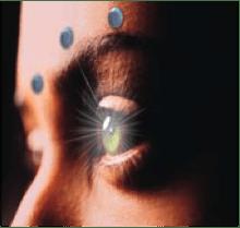 eye w dots