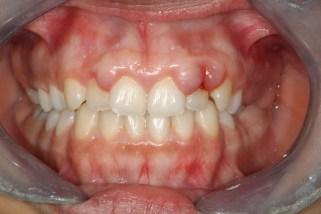 """Résultat de recherche d'images pour """"hypertrophie gingivale"""""""
