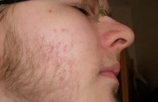 Beard and Acne